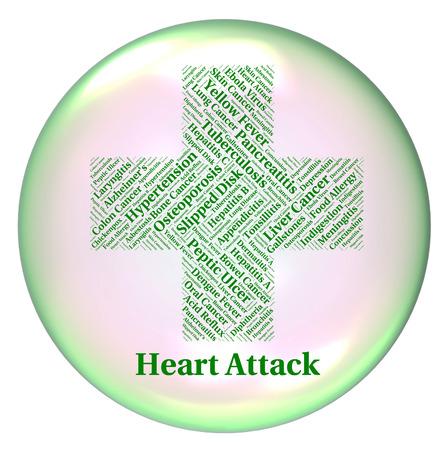 angina: Heart Attack Mostrando infarto agudo de miocardio y el infarto agudo de miocardio Foto de archivo