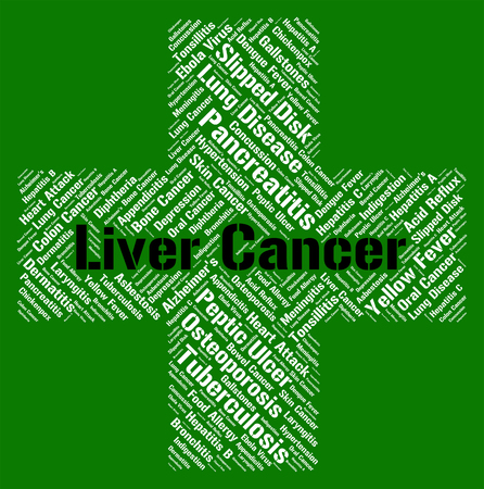 tumors: Liver Cancer Showing Malignant Growth And Malignancy