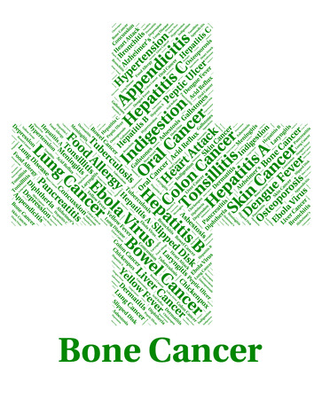 malady: Bone Cancer Meaning Cancerous Growth And Malady