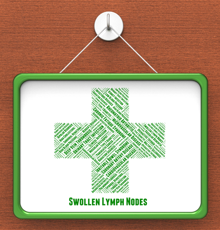 lymph: Swollen Lymph Nodes Indicating Infectious Lymphadenitides And Lymphangitis