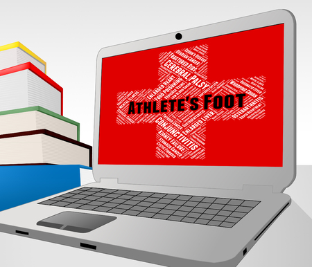 indisposition: Athletes Foot Representing Tinea Pedis And Disorders