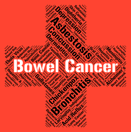 malignant growth: Bowel Cancer Representing Cancerous Growth And Guts