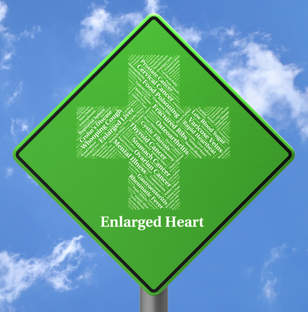 enlarged: Enlarged Heart Indicating Displays Extended And Attack