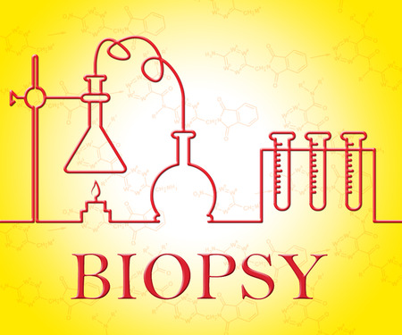 biopsia: Biopsy Test Representing Equipments Researching And Assessment Foto de archivo