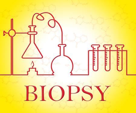 biopsia: Prueba de biopsia En representación de Equipamientos la investigación y la evaluación
