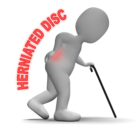 spinal column: Herniated Disc Showing Spinal Column And Lumbar 3d Rendering Stock Photo