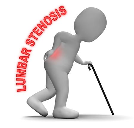 stenosis: Lumbar Stenosis Representing Spinal Column And Vertebra 3d Rendering Stock Photo