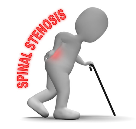 stenosis: Spinal Stenosis Representing Spine Pain 3d Rendering Stock Photo