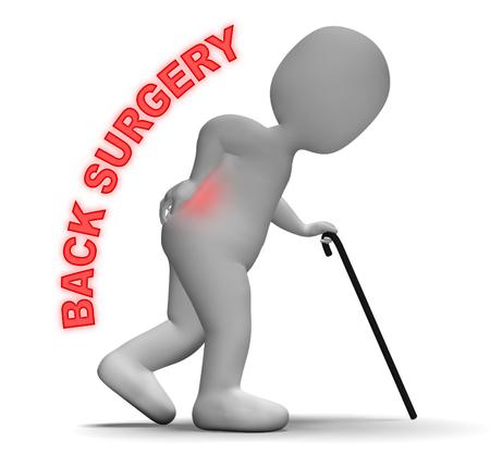 vertebra: Back Surgery Representing Operating On Spine 3d Rendering Stock Photo