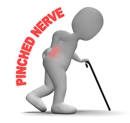 nervios: Carácter con el nervio pellizcado Indica la columna vertebral Problema 3d Rendering