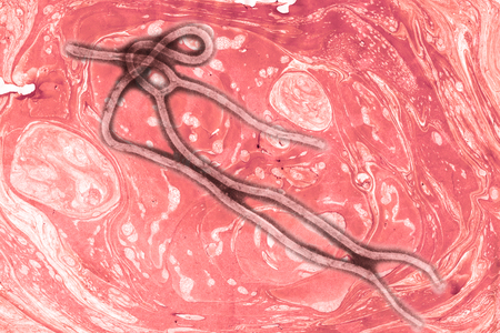 Ebola virus seen under a microscope with epidemic sign
