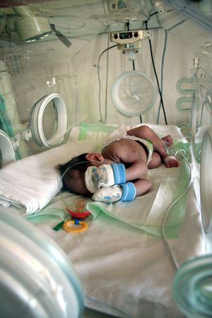 caretaking: Premature baby in incubator while sleeping Stock Photo