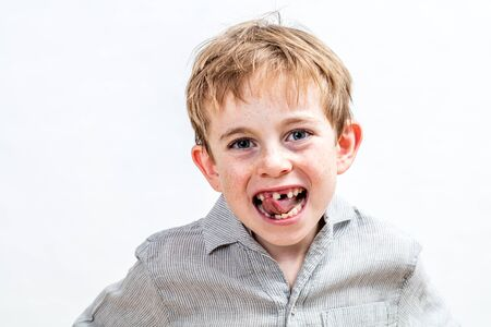 cute giggling boy with freckles being annoyed by his tooth missing, isolated, white background Banco de Imagens
