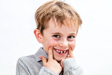 adorabile ragazzo con le lentiggini che ridacchia, gioca con un falso sorriso sdentato, ritratto in studio, sfondo bianco isolato