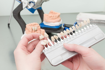 laboratorio dental: utilizando la guía de colores para verificar la chapa de la corona del diente en un laboratorio dental Foto de archivo