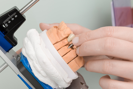Painting work at dental imprint with artificial dentition in a dental laboratory Stockfoto