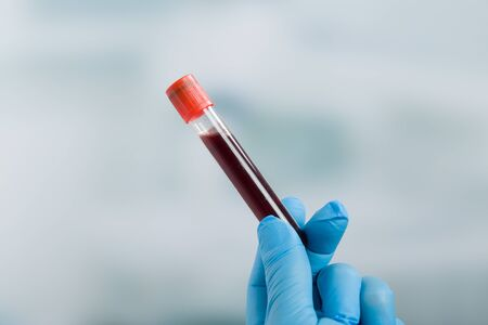 Doctor's hand with medical gloves holds a blood sample