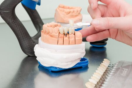 Using shade guide to check veneer of tooth crown in a dental laboratory