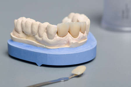 close up of checking veneer of tooth crown or implant with a shade guide in dental laboratory Stok Fotoğraf