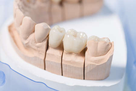 close up of a ready for use artificial dentition after final work in dental laboratory