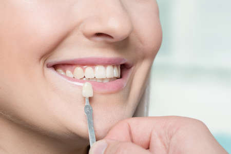 close up of a dentist checking veneer of woman's teeth with a shade guide for bleaching