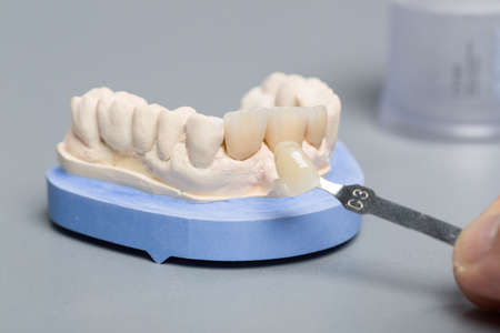 close up of checking veneer of new tooth crown or implant with a shade guide in dental laboratory
