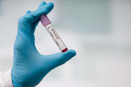 hand in medical gloves holding a blood test tube for corona virus analysis with result markers in front of a lab room Stock Photo