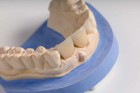 Close up incisor implants on dental imprint in a dental laboratory on a workbench ready for use