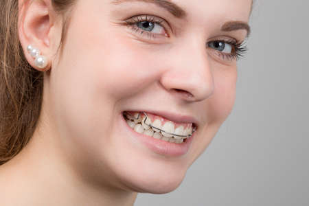 portrait of a happy female teenager with a removable dental brace in her mouth