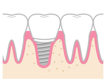 It is an illustration of an implant-treated tooth.