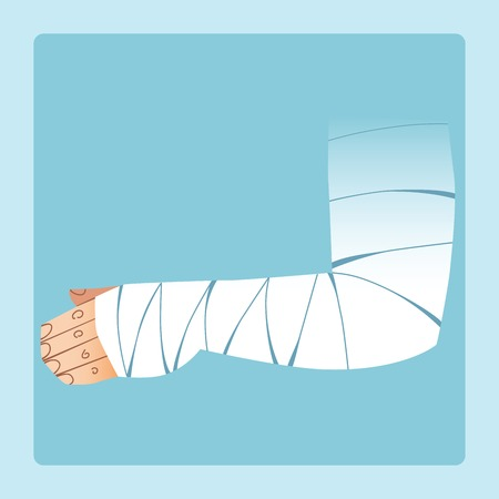 sanatorium: Bandaged hand after fracture or injury. Medicine and health Illustration