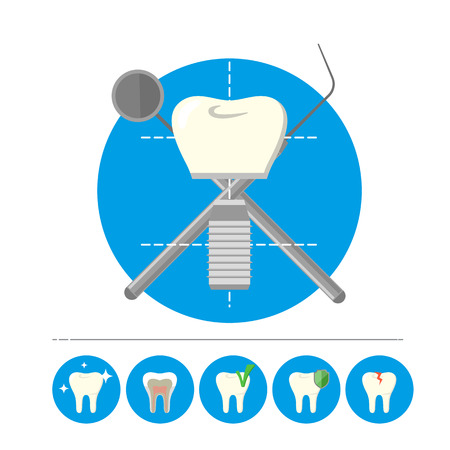 dental implants: Human tooth implant isolated on white background, vector icon Illustration