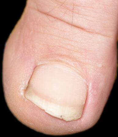 hongo: los dedos de los pies