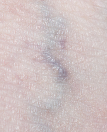 varicose: varicose veins in the leg Stock Photo