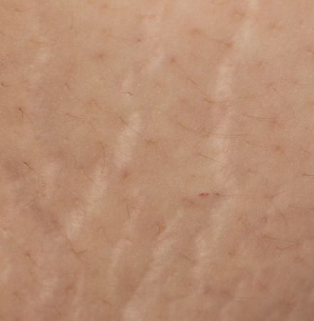 stretch marks on the abdomen as background