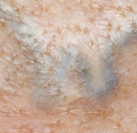 varicose: varicose veins on the skin Stock Photo
