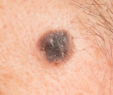 lesions: black mole on the skin Stock Photo