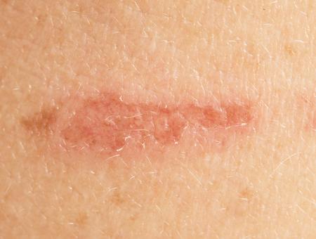 scratch on the skin close-up