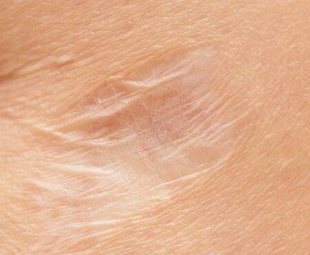 scar: round scar on his leg macro