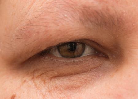 arrugas: Tapar el ojo femenino con arrugas
