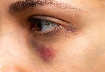 Hematoma Stock Photos And Images - 123RF