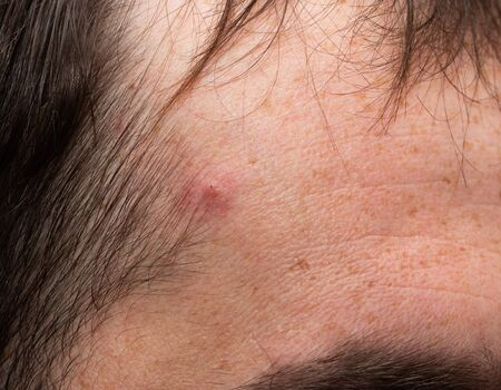 pigmentation on the skin of the face