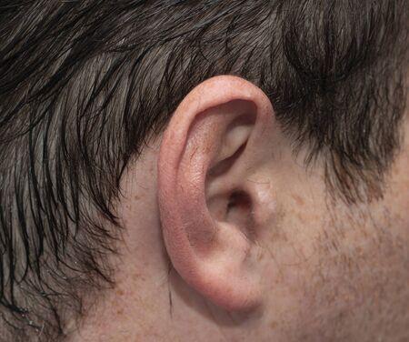 male ear with spots on the skin Фото со стока