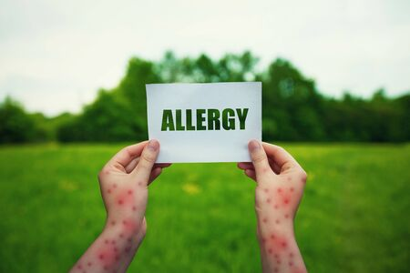 Allergic woman hands holding a paper sheet with allergy text over a green field natural background. Different symptoms of eczema, health risk. Skin irritation causes, diagnosis and medical treatment.