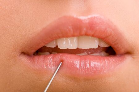 enhancement: Injection into female lips