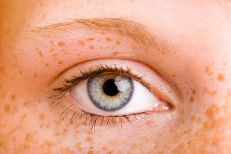 freckles: Close-Up of the eye of a young freckled woman