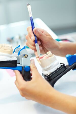 Dental technician working on a tooth crown Stock Photo - 5835570