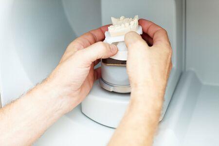 prothese: Platzieren eine zahnmedizinische Modell in einem 3D-Scanner Zahntechniker