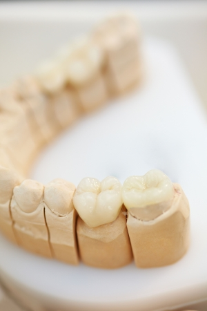inlay: Ceramic teeth inlays in a dental lab
