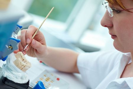 implant: Dental technician working on ceramic inlays in a lab Stock Photo